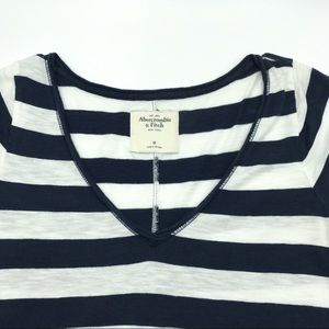Abercrombie & Fitch Tops - Abercrombie & Fitch Short Sleeve Striped Top